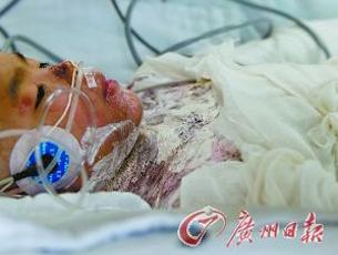 女孩遭父亲用开水淋烫 烧伤面积达85%